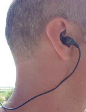 Oído derecho R